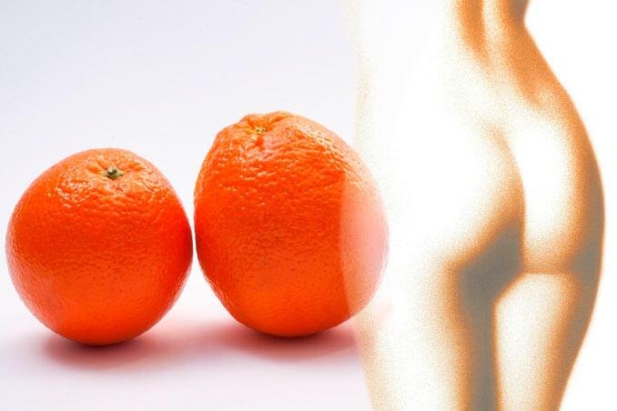 Remedios naturales para reducir la celulitis