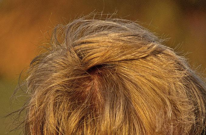 Pérdida de cabello por estrés - El Círculo de la Belleza